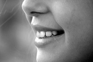 שיניים לבנות